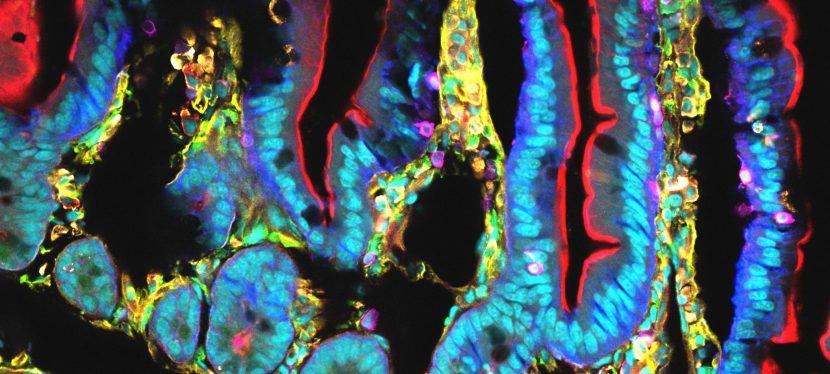 Continuum et microbiote, une rencontre du 2iemetype!